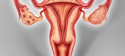 10 Signs Of Ovarian Cancer, You Should Never Ignore